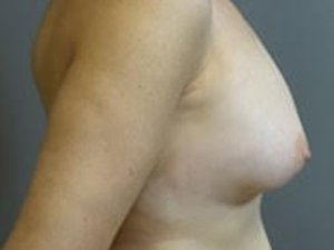 The patient seen is a 36-40 year old caucasian female. The procedure performed was a full Mastopexy with Fat Grafting to the Breasts to help contour the shape. Performed by Dr. Jeffrey J. Ptak, MD, FACS. Before Photo, Lateral View.