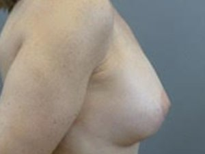 The patient seen is a 36-40 year old caucasian female. The procedure performed was a full Mastopexy with Fat Grafting to the Breasts to help contour the shape. Performed by Dr. Jeffrey J. Ptak, MD, FACS. After Photo, Lateral View.