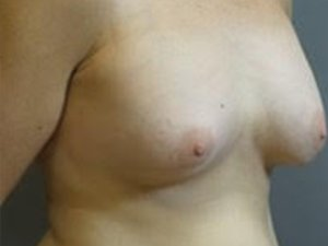 The patient seen is a 36-40 year old caucasian female. The procedure performed was a full Mastopexy with Fat Grafting to the Breasts to help contour the shape. Performed by Dr. Jeffrey J. Ptak, MD, FACS. Before Photo, Oblique View.
