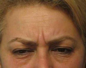 Patient #: 2082Gender: FemaleEthnicity: CaucasianAge: 51 - 65Procedure: ThermiRase