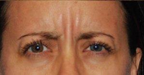 Patient #: 2088Gender: FemaleEthnicity: CaucasianAge: 41 - 50Procedure: ThermiRase