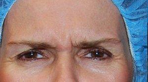 Patient #: 2092Gender: FemaleEthnicity: CaucasianAge: 51 - 65Procedure: ThermiRase