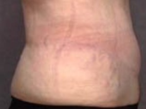 Patient #: 1988Gender: FemaleEthnicity: CaucasianAge: 41 - 50Procedure: Tummy Tuck