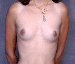 breast_patient05_before01