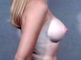 breast_patient08_after01