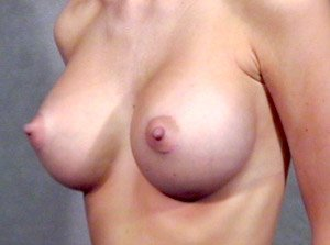 breast_patient10_after01