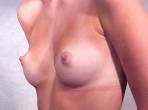 breast_patient10_before01