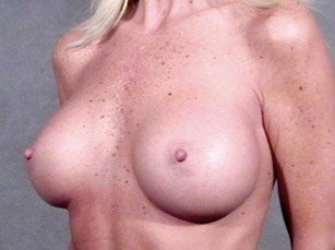 The procedure performed was a primary breast augmentation with silicone breast implants. The patient shown is a caucasian female, age 31-35. After photo, oblique view. By Dr. Jeffrey Ptak. Patient went from Full B Cup breast size to D/DD Cup Bra.