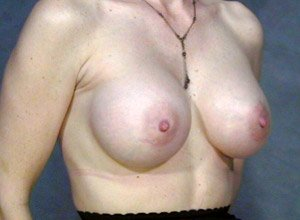 The procedure performed was a primary breast augmentation with silicone breast implants. The patient shown is a caucasian female, age 31-35. Postoperative photo, oblique view. By Dr. Jeffrey Ptak.