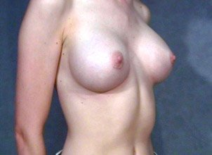 The patient shown is a caucasian female, age 31-35. The procedure performed was a primary breast augmentation with silicone breast implants. After photo