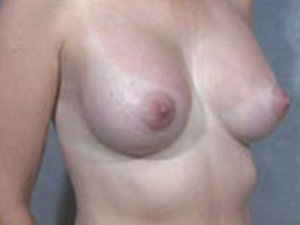 This patient is a 35 to 40 year old, caucasian female who received a Primary Breast Augmentation Procedure. Incision made through the nipple. Oblique view. by dr. jeffrey ptak. Postoperative after picture