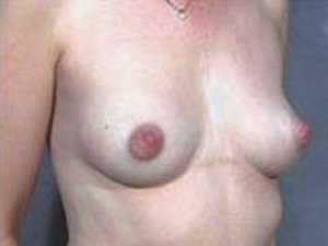 This patient is a 35 to 40 year old, caucasian female who received a Primary Breast Augmentation Procedure. Incision made through the nipple. Oblique view. by dr. jeffrey ptak
