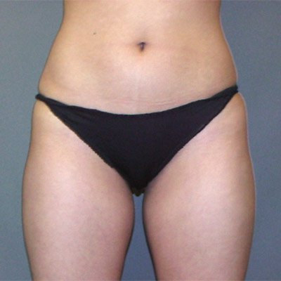 The patient is a 31-35 year old caucasian female. The procedure performed was ultrasonic laser liposuction to the inner and outer thighs, hips, saddlebags to thin out the fat layer. The performing surgeon was Dr. Jeffrey Ptak. Before Photo, Anterior View