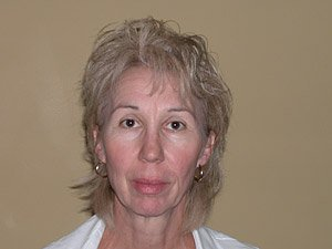 endomidfacelift-fat-graftin-chin-implant-platysmaplasty-fron1