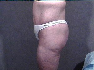 This patient is a 34 - 40 year old, caucasian female. 360 abdominoplasty, tummy tuck where the incision was continued the entire way around the body to incorporate a body lift. She also received a buttock lift, inner thigh lift,   and incidental liposuction. side view. after major weight loss.