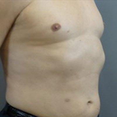 Male Gynecomastia Procedure performed by board certified plastic surgeon, Dr. Jeffrey Ptak.