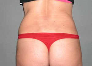 Procedure performed by board certified plastic surgeon Dr. Jeffrey Ptak, MD. Procedure was ultrasonic VASER liposuction to the waist, flanks, and back to help contour the patient's waistline. The patient is a 41-50 year old caucasian female. Posterior view, after photo.