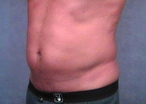 The patient is a 41-50 year old Caucasian male. The procedure performed was ultrasonic vaser liposuction to the abdomen, belly, stomach, to thin out the fat layer. The performing surgeon was Dr. Jeffrey Ptak. Before Photo, Oblique View