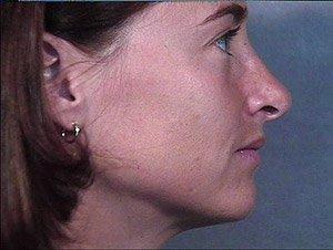 rhinoplasty-2-profile-post1