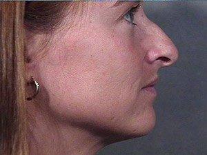 rhinoplasty-2-profile-pre1