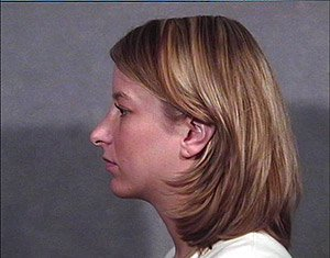 rhinoplasty-and-chin-implant-profile-post1