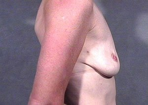 This patient is a 41-50 year old caucasian female. Procedure performed by board certified plastic surgeon, Dr. Jeffrey Ptak, was a primary breast augmentation with saline implants under the muscle. Subpectoral implants. Before lateral view photo