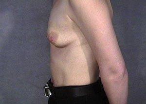 subpectoral-breast-augmentation-saline-implants51