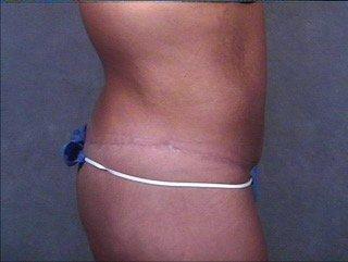 abdominoplasty-buttock thigh lift profile post craig