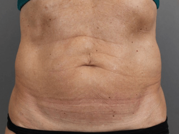 Body Contouring procedure performed by Dr. Ptak. BODYtite Flanks/Abdomen Morpheus8 Abdomen. Learn more by visiting DoctorPtak.com.