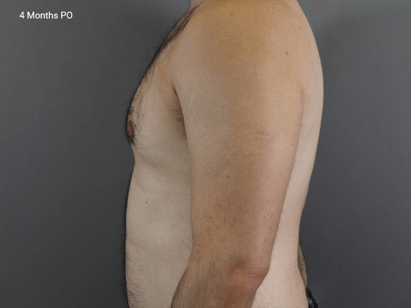 Bilateral Male Breast Reduction for Gynecomastia Procedure performed by Dr. Jeffrey Ptak. Learn more by visiting DoctorPtak.com