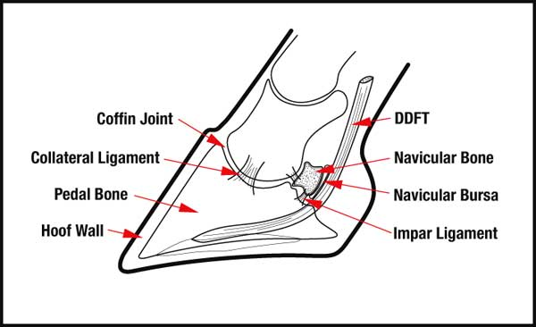 navicular_diagram_1.jpg