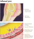 Intra-articular Corticosteroids