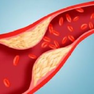 """Nutriționist: """"Aceste alimente conțin fibre speciale care scad absorbția colesterolului ce provine atât din alimente, cât și din bilă"""""""