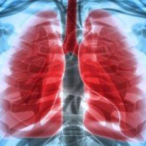 Infecții și boli de plămâni. Ce pot ascunde transpirațiile nocturne