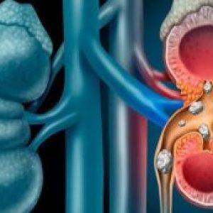 Detoxifierea rinichilor, în mod natural. Previne infecțiile urinare și pietrele la rinichi în 3 zile!