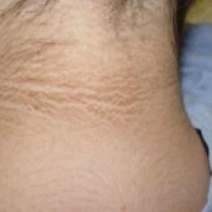 Ai observat că ai aceste pete pe piele? Poate fi un semn timpuriu de diabet