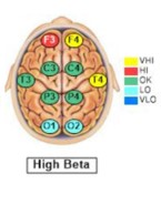 neurofeedback brain map