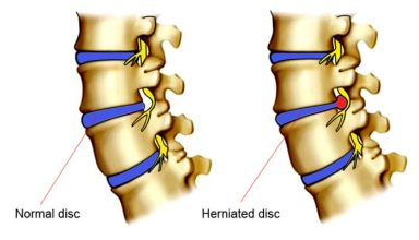 What is the Better way to Treat Herniated Disc? Chiropractic or Orthopedic?