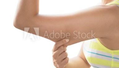 Underarm Flab