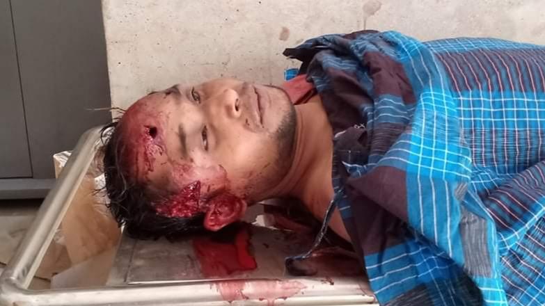 গাজীপুরে 'বন্দুকযুদ্ধে' অস্ত্র ব্যবসায়ী যুবক নিহত, র্যাব'র দুই সদস্য আহত