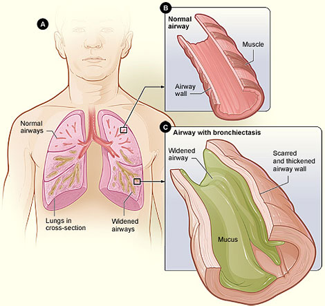Over time, bronchiectasis can cause pneumonia.