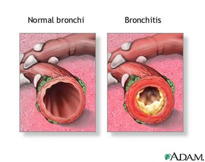 Views of the inside of a normal breathing tube on left and of chronic bronchitis on the right. Note the white-yellow mucus lining the inside of the airway in chronic bronchitis.