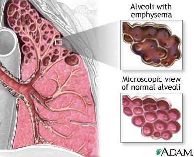 Microscopic view of the air sacs (alveoli) in the top right showing emphysema (destruction and enlargement).