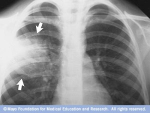 Arrows show pneumonia in the fight lung