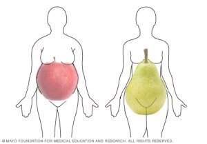 Obesity and worse outcomes regardless of shape