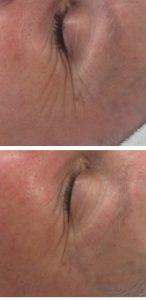 Vorher/Nachher 1.Behandlung