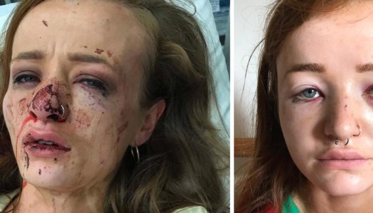 Young woman appeals for witnesses after horrific Letterkenny attack