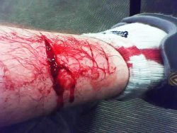 bleeding wound