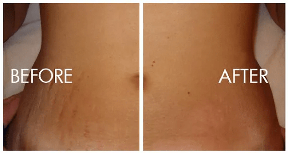 Stretch marks removal in Dehradun, Procedure, Benefits, Cost
