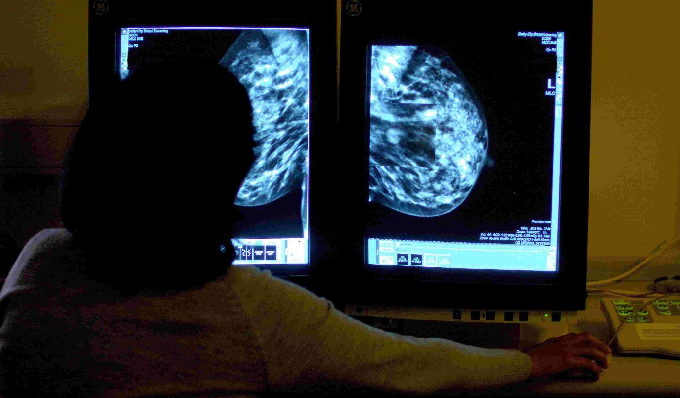 Dorset Echo: MAMOGRAM: Screening is to be extended in older women